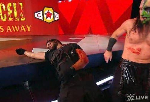 Seth Rollins is pretty banged up!