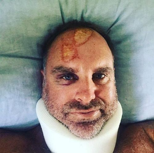 Mathew Hayden injured his head while surfing