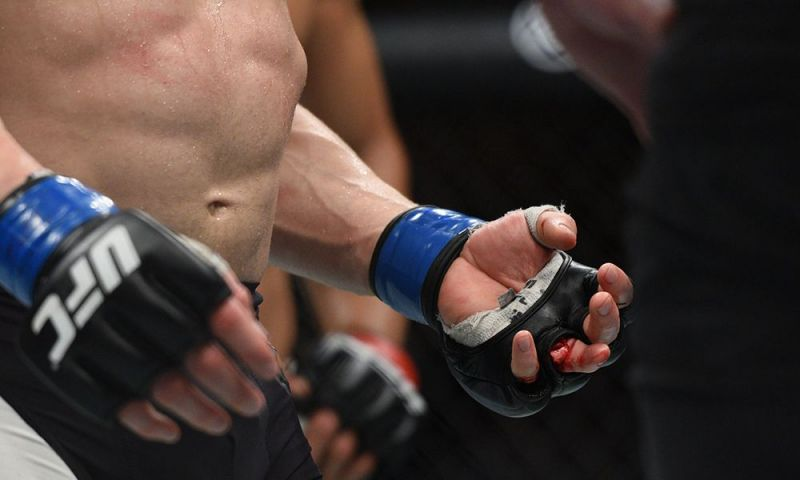 Josh Emmett suffered a broken finger against Jon Tuck - thankfully, no small joint manipulation was involved