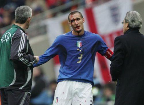 Chiellini's commitment can hardly be matched