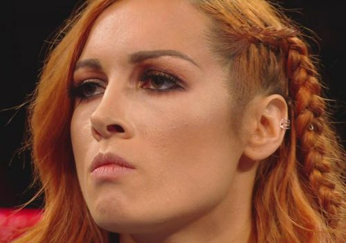 If you weren't behind Becky Lynch before, its time to do so now