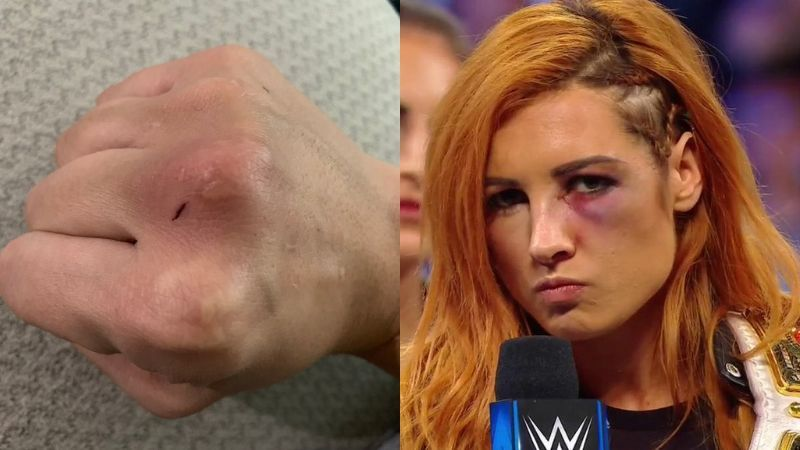 Becky Lynch was on the receiving end of a thunderous punch from Nia Jax last year