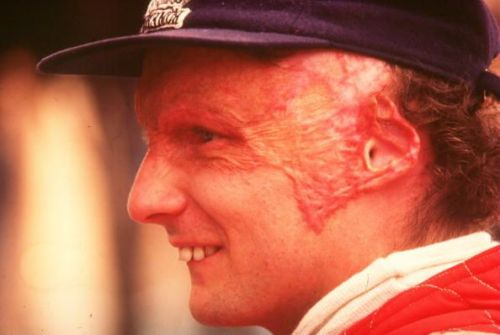 Lauda carried the scars from his 1976 crash for the rest of his life.