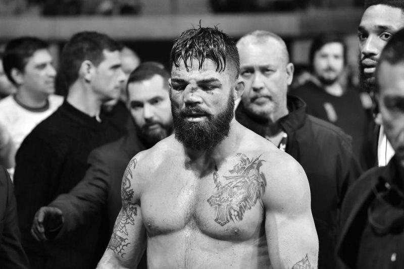 UFC फाइटर माइक पेरी की नाक टूटी