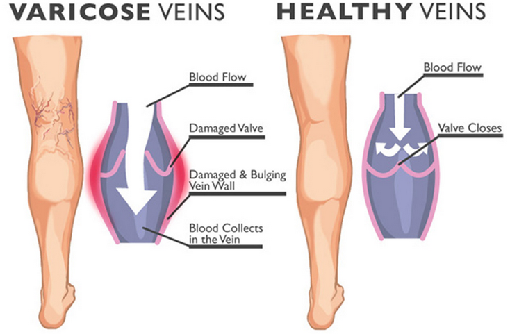 The Do S And Dont S Of How To Deal With Varicose Veins