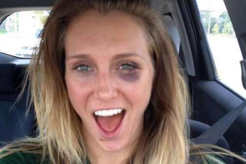 Charlotte without makeup and with a black eye!