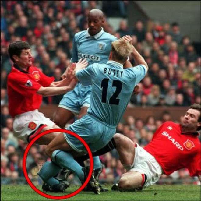 David Busst leg break injury