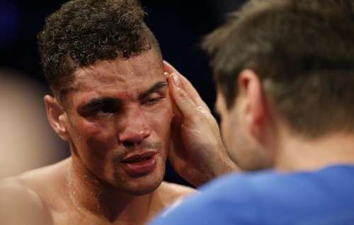 Britain Boxing - Anthony Ogogo v Craig Cunningham WBC International Middleweight Title - Barclaycard Arena, Birmingham - 22/10/16 Anthony Ogogo looks dejected after the fight Mandatory Credit: Action Images / Andrew Couldridge Livepic EDITORIAL USE ONLY.